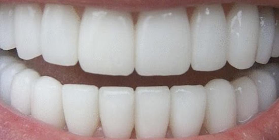 Her smile is always white! She reveals her secret for white teeth!