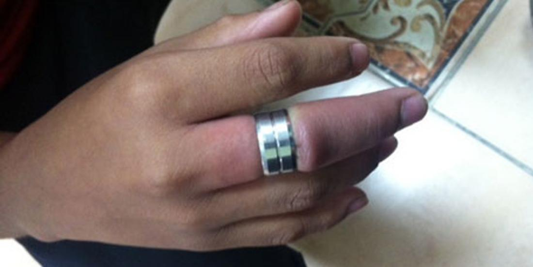 Remove a ring stuck on a finger with 2 common objects! Use the same technique as hospitals!