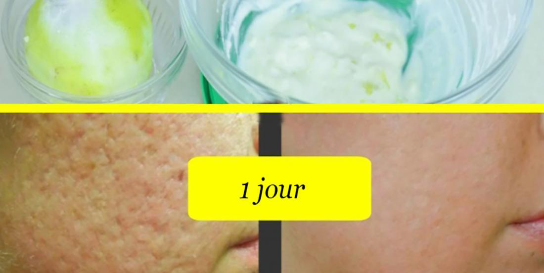 Skin pores tighten for a smoother skin, what she adds to her lemon zest gives an amazing complexion!