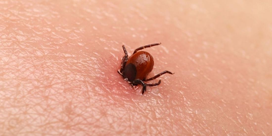 You do not want to be stung by a tick this summer? Here's a simple trick to protect yourself!